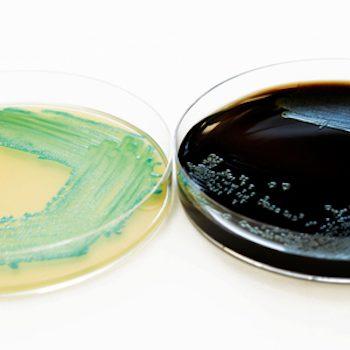 Schnellmethode-Listeria-BAV-Institut